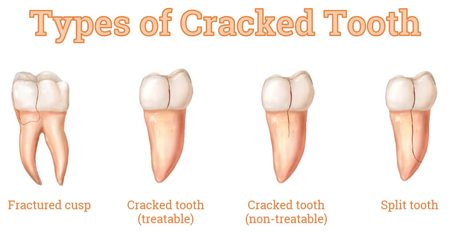 cracked tooth
